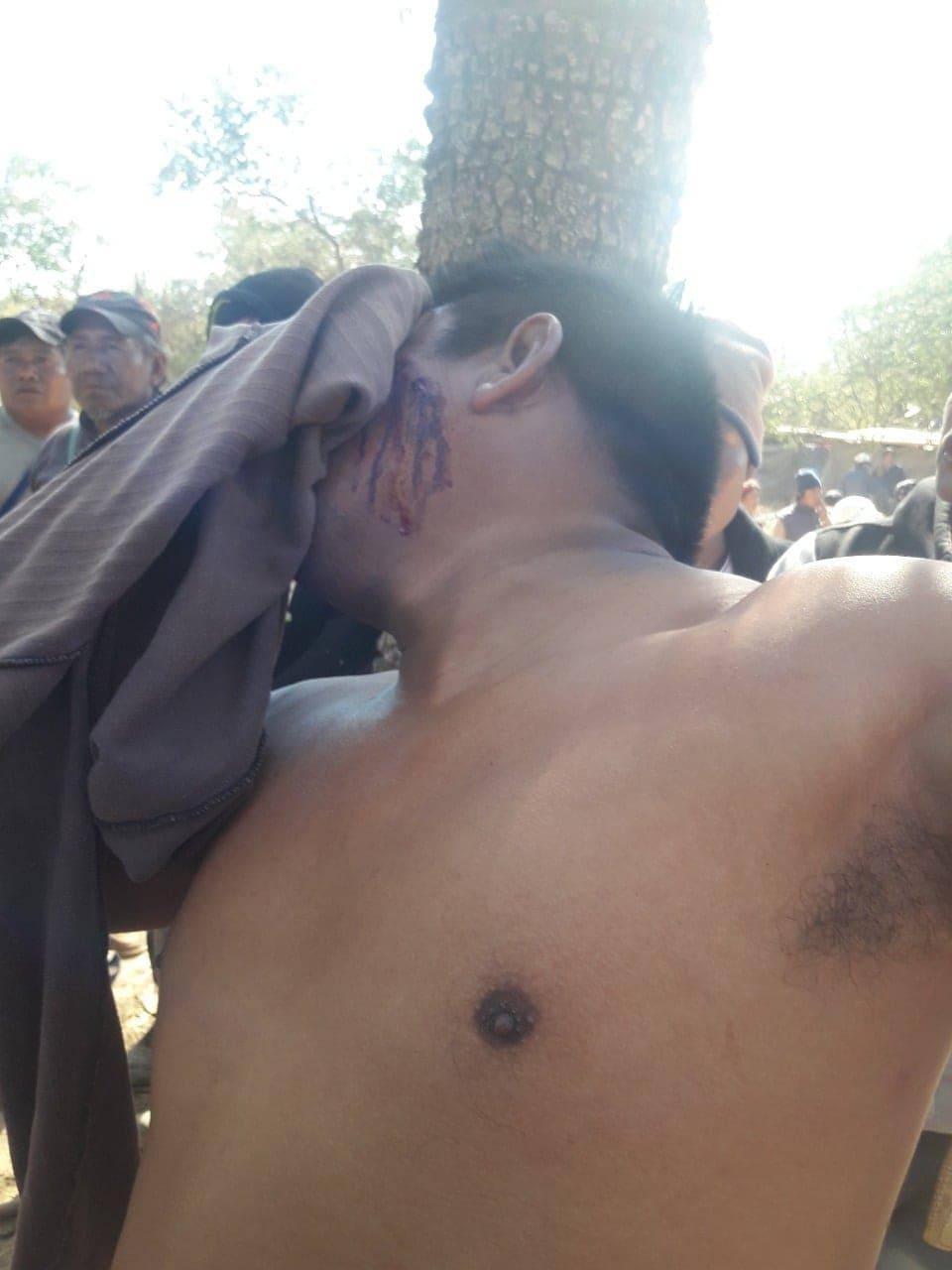 Herido por la Infantería policial salteña en la ruta 54.