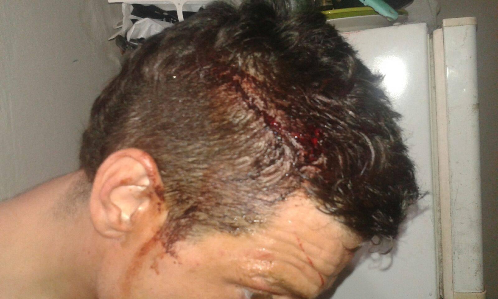 Militante peronista agredido por la policía del PRO en Vicente López.