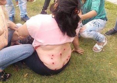 Una trabajadora platense recibió doce balas de goma en su espalda.