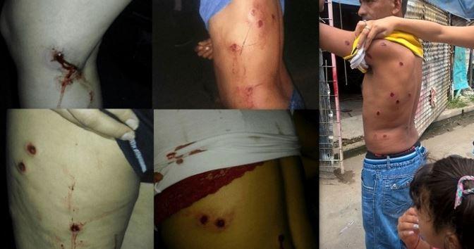 El documento fotográfico obtenido por el sitio web colega NOTAS.ORG.AR muestra el grado de virulencia de la represión a los vecinos en el Bajo Flores.