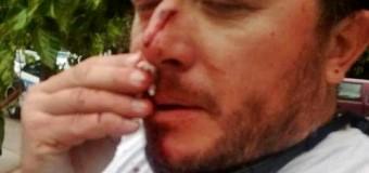 REPRESIÓN – Régimen | En Mendoza atacaron a los empleados estatales.