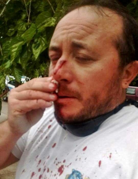 Roberto Macho, Secretario General de ATE Mendoza agredido por patovicas del Hipódromo.