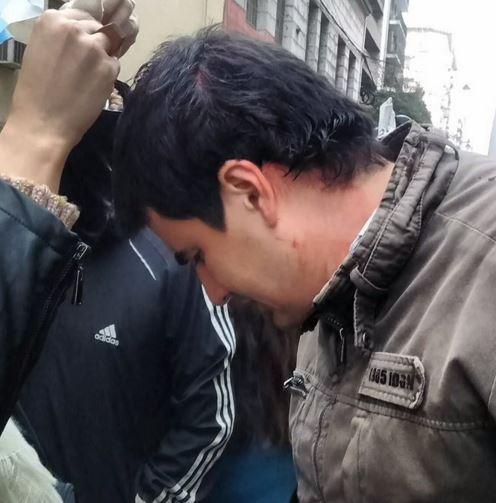 El concejal Toniolli (FPV) herido por la represión de los uniformados en Rosario. FOTO: Toniolli.