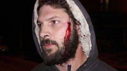 Varios obreros fueron golpeados y detenidos. FOTO: CTEP