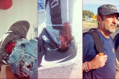 Pierna fracturada por las balas de la Policía de Neuquén.
