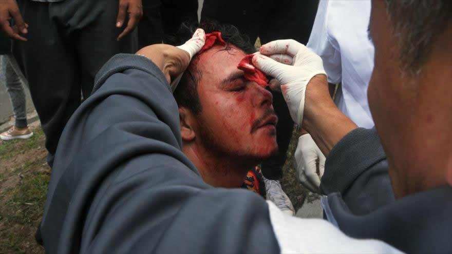Cerca de 20 muertos y centenares de heridos es el saldo de la represión de la dictadura hondureña contra la población que pide democracia.