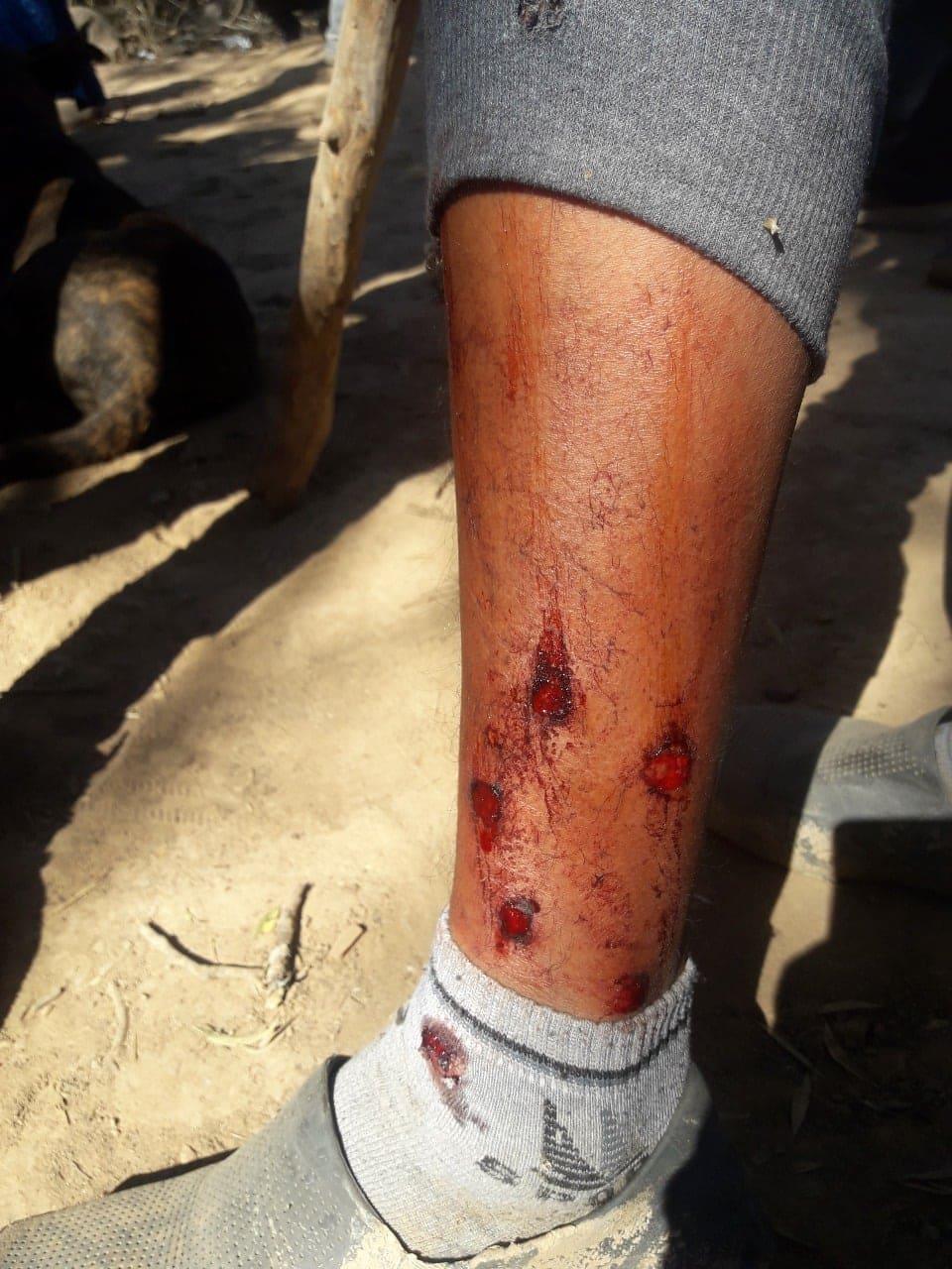Herido en una pierna por pedir agua. Ataque de la Infantería de Urtubey.