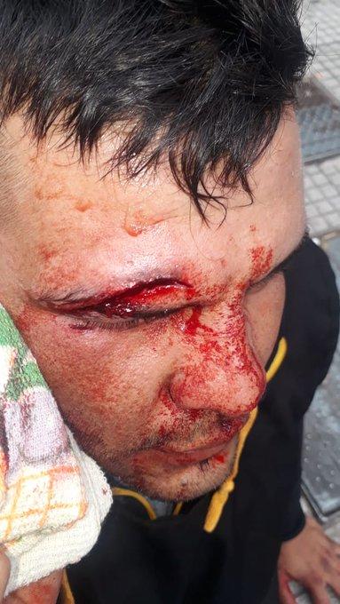 Manifestante herido por la represión policial en la 9 de Julio en la CABA.