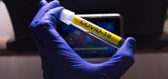 CORONAVIRUS – Argentina | Ya distribuyeron 37,3 millones de dosis en todo el país.